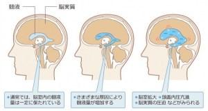 水頭症図説
