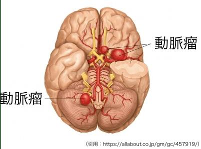 未破裂脳動脈瘤