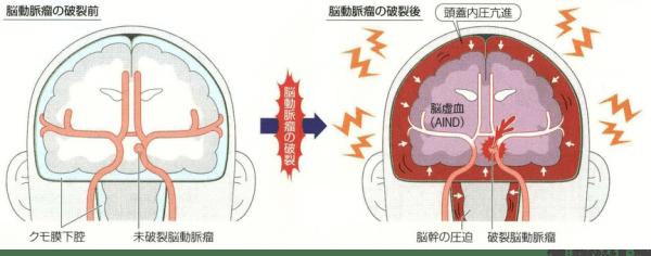 くも膜下出血動脈瘤