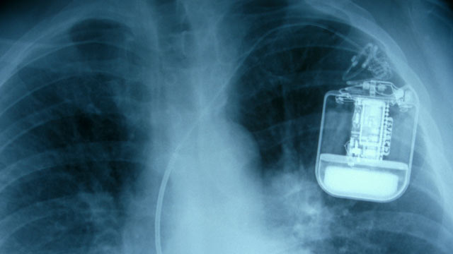 PHOTO:A pacemaker x-ray.