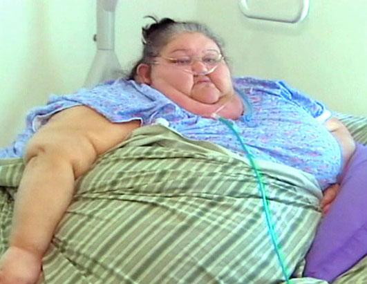 https://i1.wp.com/a.abcnews.com/images/Health/abc_obese_woman_080924_ssh.jpg
