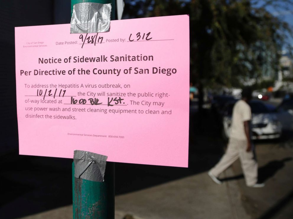 PHOTO: A man passes behind a sign warning of an upcoming street cleaning to address a hepatitis A outbreak in San Diego, Sept. 28, 2017.