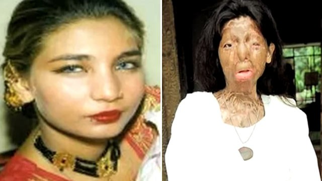 PHOTO: Pakistani acid victim Fakhra Yunus is seen before and after her attack in this undated video