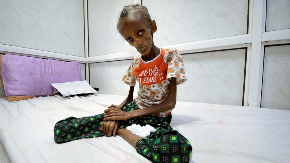 Images of Starving People in Yemen Help to Show the Horrors of War