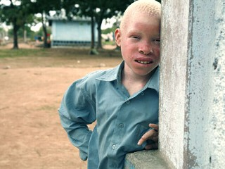 PHOTO Tanzanian Albinos Hunted Down