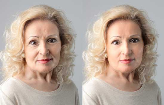 Alina Before & After Face Using GenF20 Plus
