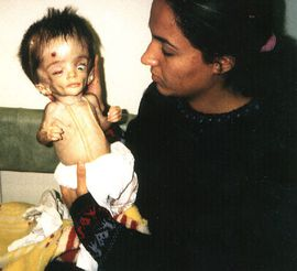https://i1.wp.com/a33.idata.over-blog.com/284x246/1/07/22/91/Anti-War-Protests/Anti-war/iraqi-child-victim-of-depleted-uranium.jpg