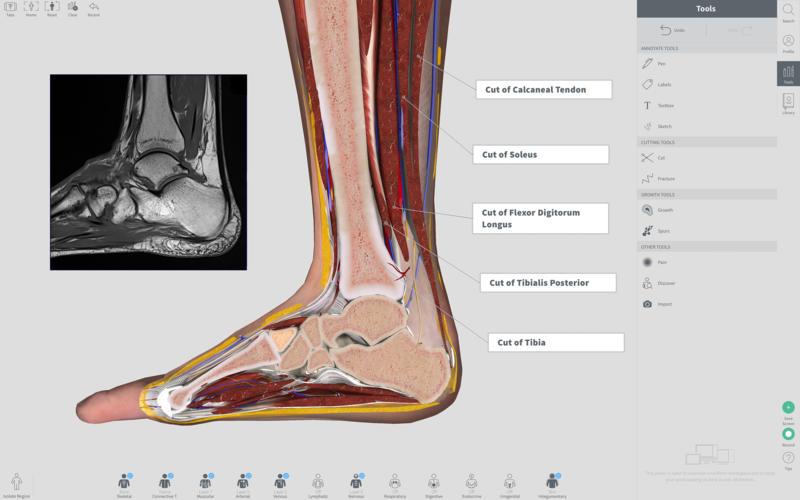Complete Anatomy 2018 for Mac 3.0 Full Version 破解版 - 强大的3D医学人体模型