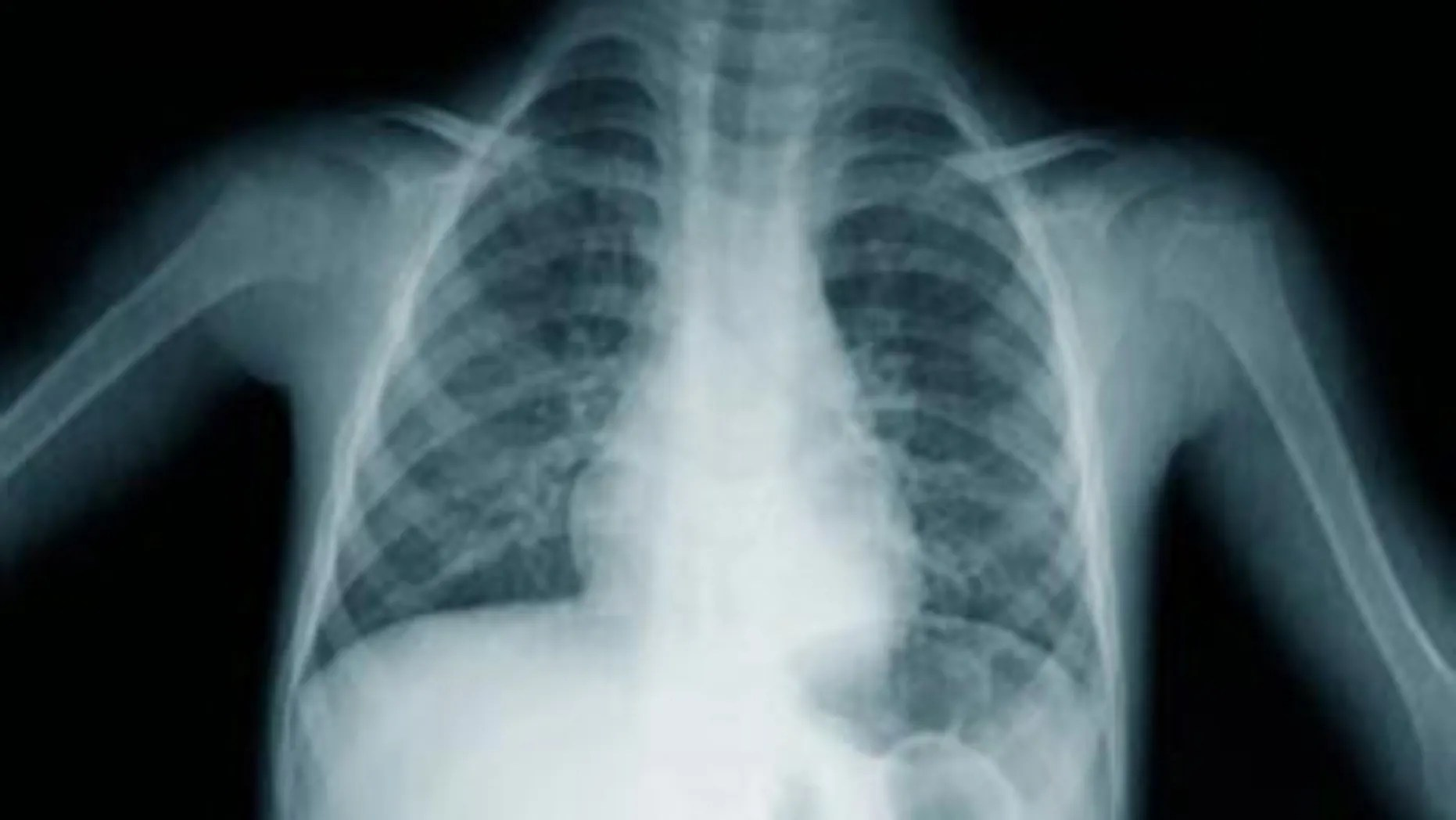 X-Ray Lung Cancer Screening Does Not Prevent Deaths | Fox News