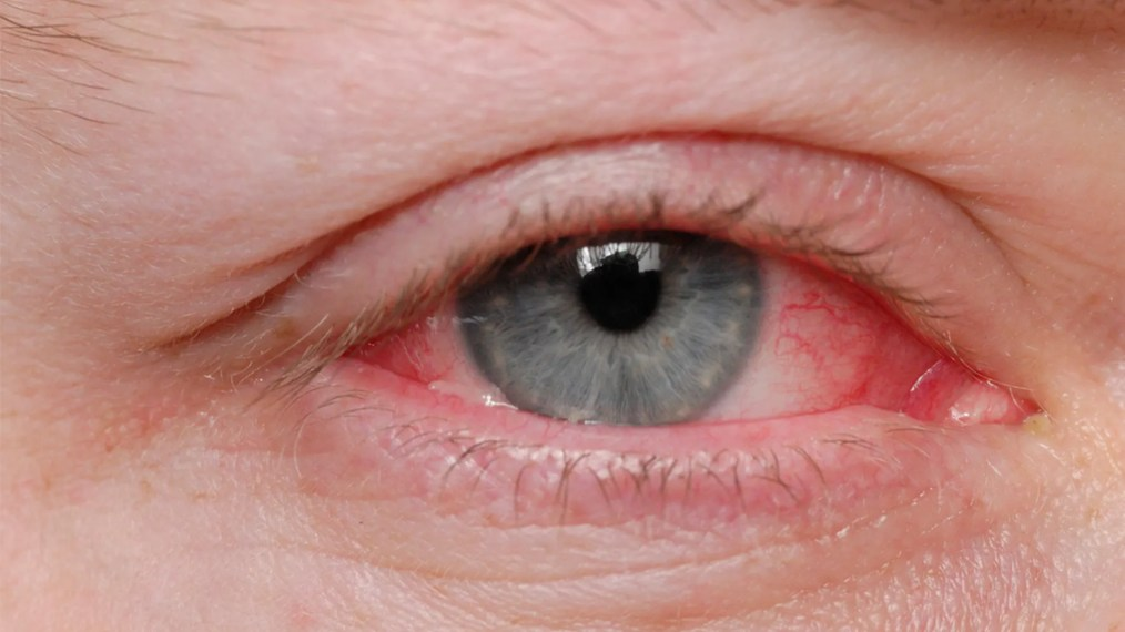 A man in Italy was diagnosed with a rare condition that caused him to bleed from his eyes.