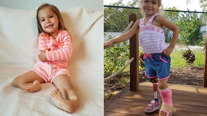 La familia de Victoria encontró un cirujano en Florida que realizó dos cirugías milagrosas para salvar una de sus piernas y darle la posibilidad de caminar por primera vez.