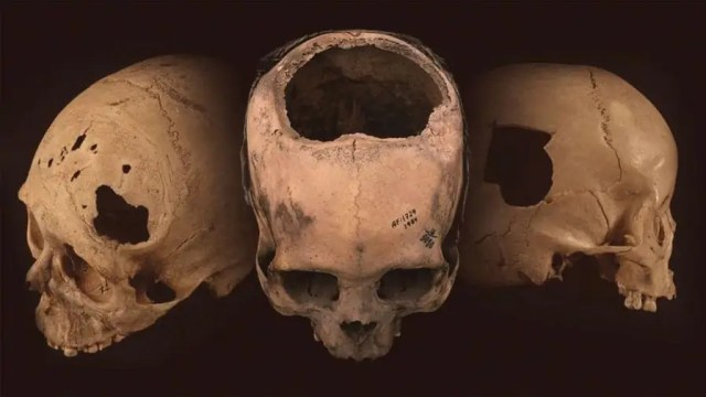 The Incas mastered the practice of trepanation, which is the process of drilling holes in people's skulls.