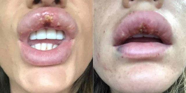 Knappier a déclaré qu'elle avait déjà reçu du Botox dans une clinique et qu'elle pensait que l'injection serait sans danger.