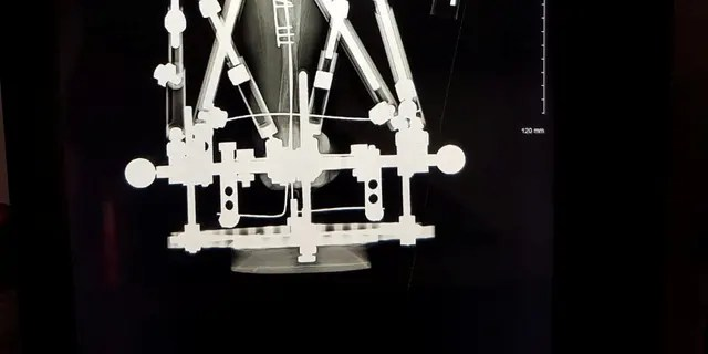 Victoria hatte ihre erste neunstündige Operation am 24. Juli, als ihr rechtes Bein oberhalb des Knies amputiert wurde und Stifte in ihr linkes Bein gesteckt wurden, bevor ein Fixateur angebracht wurde.
