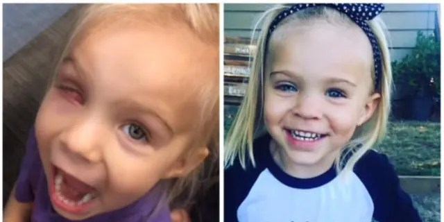 Gracie had her right eye urgently removed and replaced with a painted prosthetic and is now cancer-free.