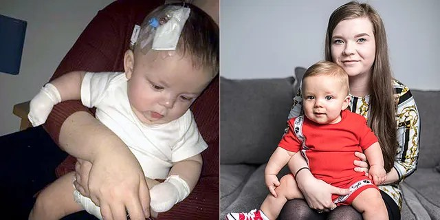 Noah, pictured during his recurrence in March, and right healthy, allegedly contracted the virus from an infected person at a christening.