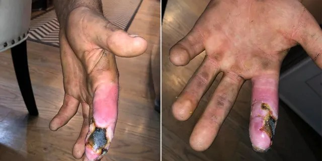 He said that once the blister was popped, the skin surrounding it began peeling away.