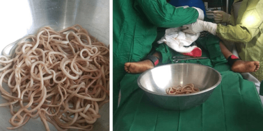 The boy's case was published in the Journal of Medical Case Reports on May 24, where surgeons noted an intestinal blockage caused by a worm infestation.