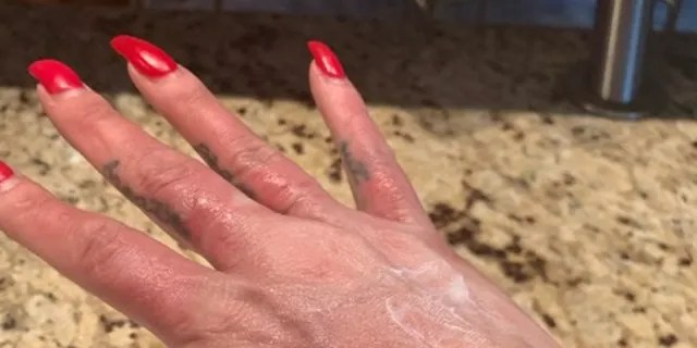 """""""I woke with blisters forming in between my fingers and on the tops of my hands,"""" she said. (Amber Prepchuk)"""