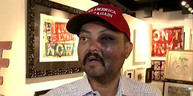 """Jahangir Turan claims he was assualted Tuesday night for wearing a """"Make American Great Again"""" hat that he had purchased earlier that day."""