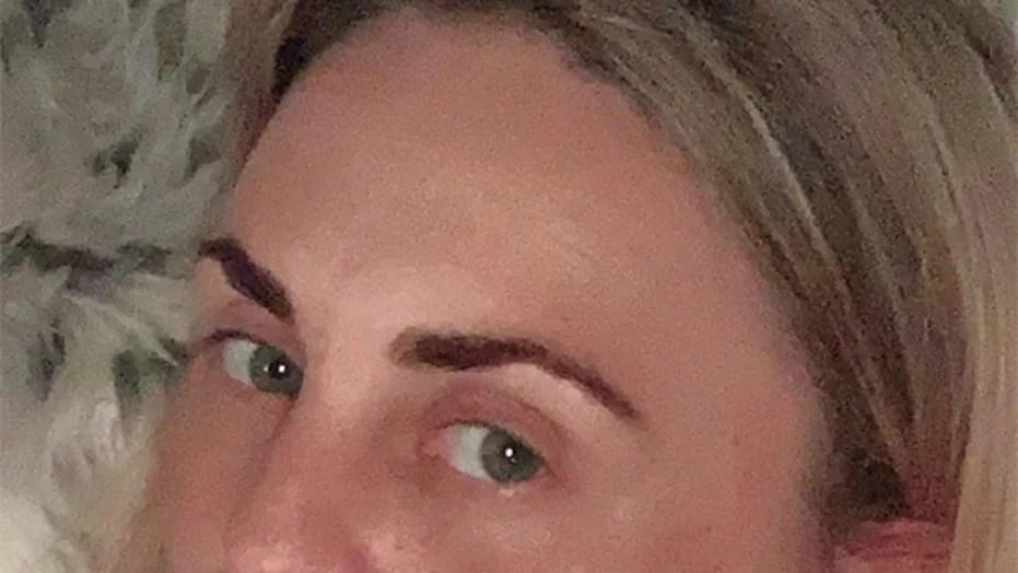 Woman slammed for crowdfunding butt lift after free nose job scandal   Fox  News
