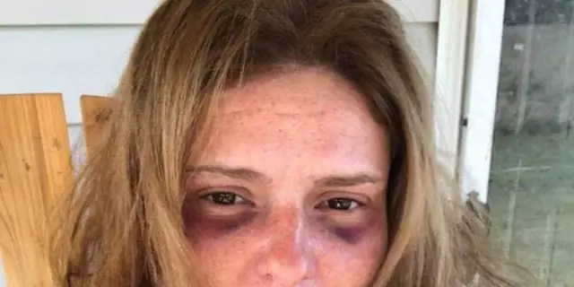 """Facebook messages showed that Haley had reached out to a fellow member of a domestic-violence support group and declared that she had been """"beaten pretty bad"""" by her estranged husband a week earlier."""