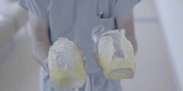 The team used 3-D printed models to help plan for separating their abdomen and their shared liver.