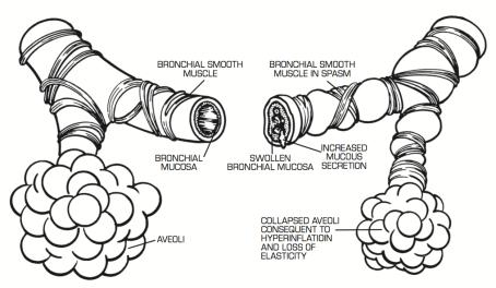 AAACD - Asthma Causes