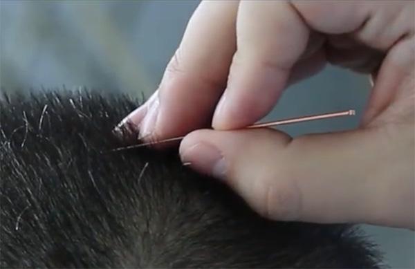 acupuncture-calgary