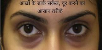 reason-solution-dark-circles-under-eye
