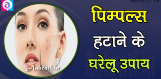 Use These Home Remedies To Remove Pimples