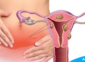 Tumor In Uterus Fibroids