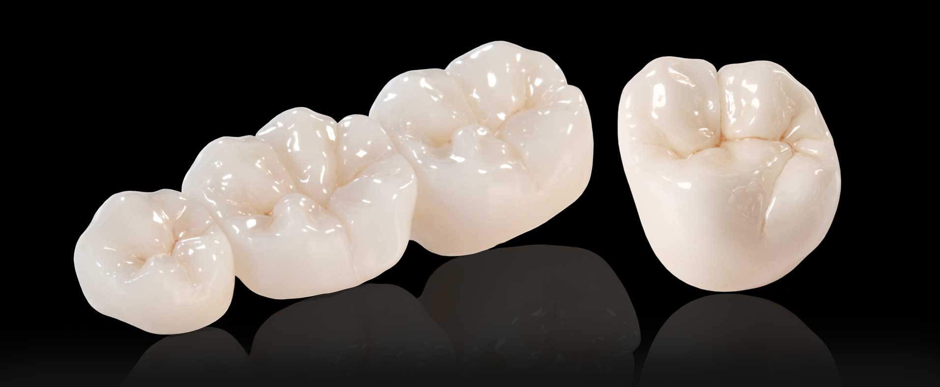 CAREING FOR  YOUR DENTAL CROWN ?