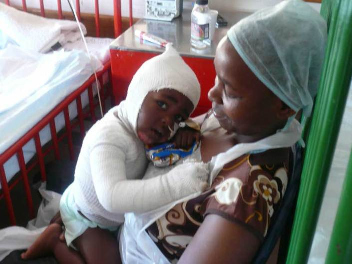 ABC bike and hike challenge - A child wrapped in bandages in her mother's arms.