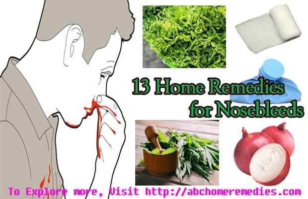 Nosebleeds-home-remedies