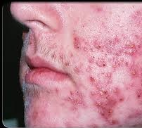 10 Outstanding Home Remedies for Cystic Acne