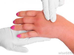 15 Prevent Home Remedies For Swelling