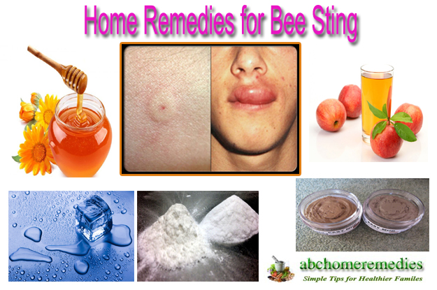 Home Remedies for Bee Sting