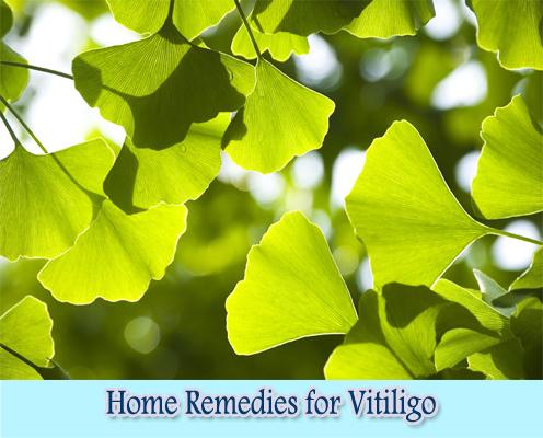 Ginkgo Biloba : Home Remedies for Vitiligo