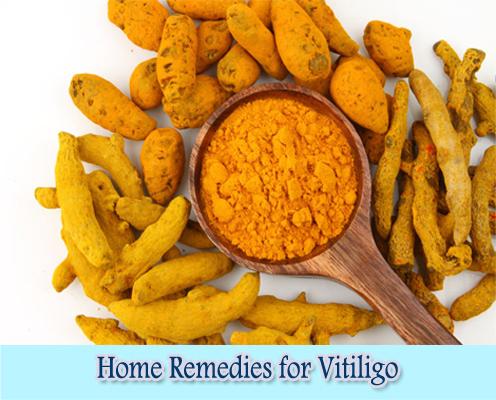 Turmeric : Home Remedies for Vitiligo