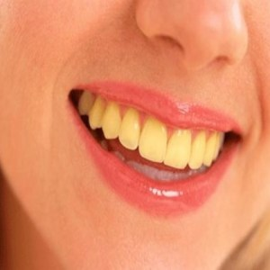 12 Shiny Home Remedies for Yellow Teeth