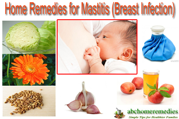Home Remedies for Mastitis (Breast Infection)