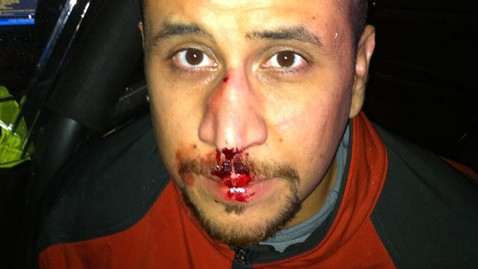 ap george zimmerman kb 121204 wblog George Zimmerman Lawyers Say Bloody Nose Photo Creates Doubt