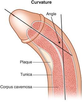 penis sulcus
