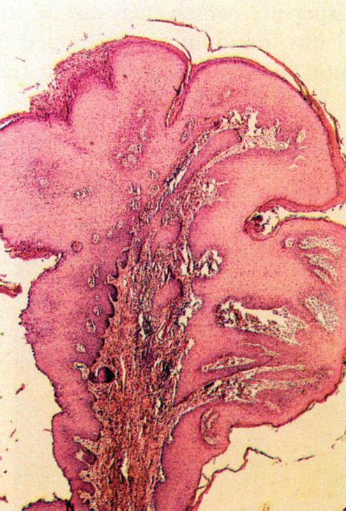 condyloma acuminata labor gastric cancer vaccine