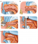 Laparoscopic Right Colectomy Techniques for Crohn's and Reoperative Surgery