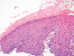 Chapter 10 – Histology of Gastroesophageal Reflux Disease and Barrett's Oesophagus
