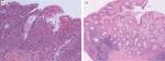 Chapter 21 – Inflammatory Bowel Disease Diagnosis