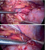 and Robotic Reconstruction of theUpper Genitourinary Tract