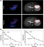 Magnetic resonance imaging for gastric motility and function